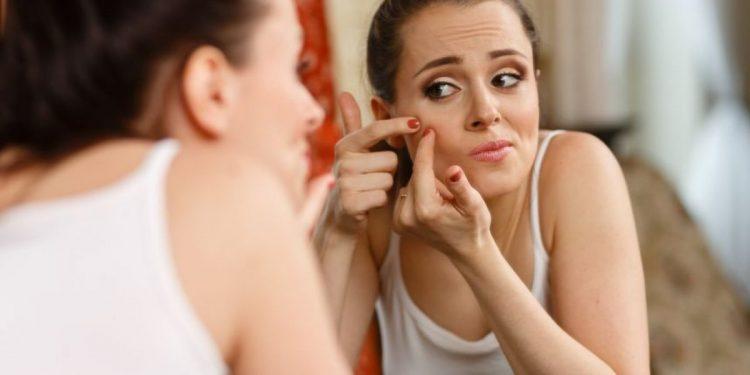 Cómo quitar las cicatrices que te deja el acné